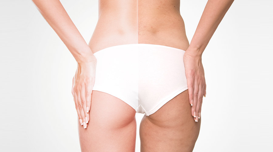 Cellulite: cause e rimedi