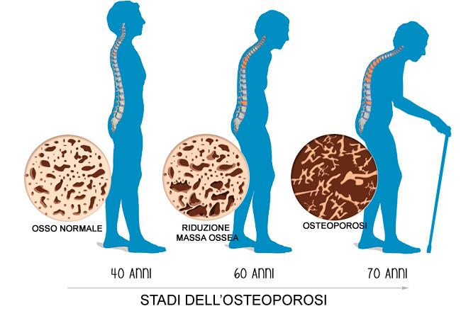 Gli stadi dell'osteoporosi