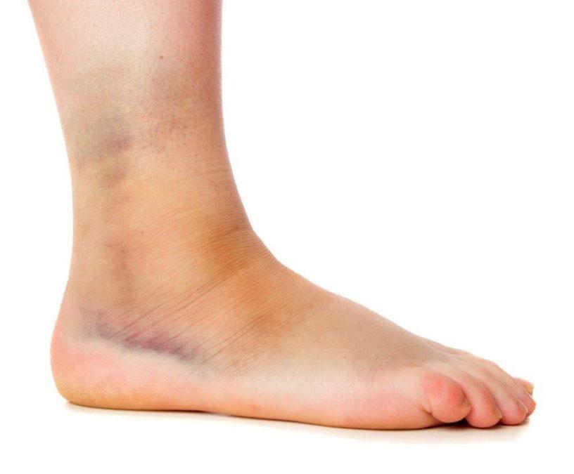distorsione alla caviglia